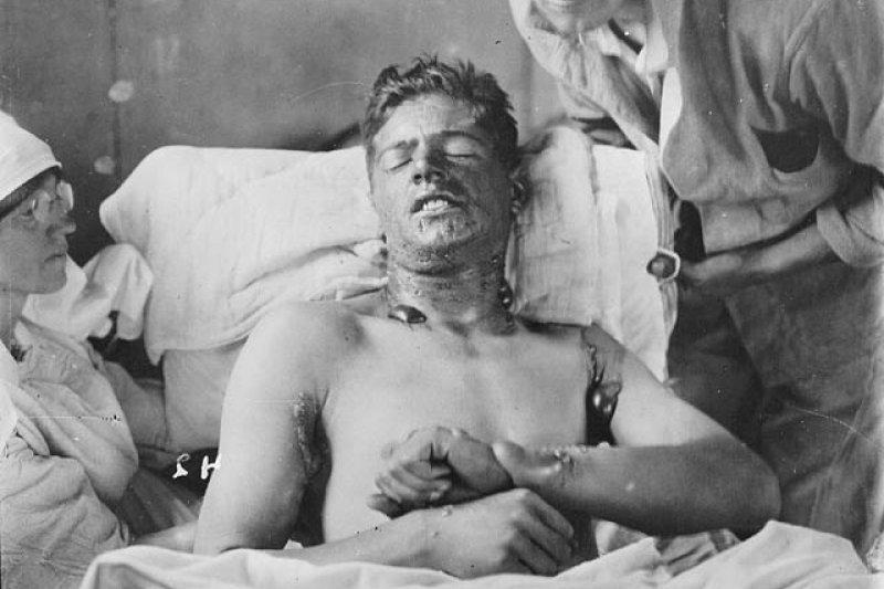 毒氣戰中受傷的加拿大士兵